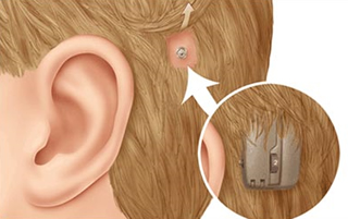 Bone-Anchored Hearing Aids
